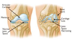 knee oa cartoon